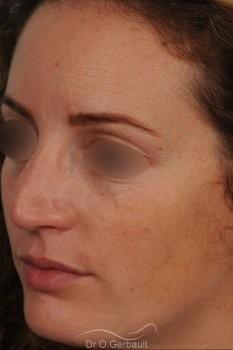 Bosse sur le nez avec pointe large et asymétrique vue de quart avant