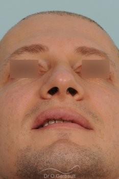 Bosse chez l'homme avec nez fort vue de dos apres