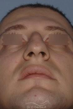 Bosse chez l'homme avec nez fort vue de dos avant