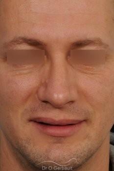 Bosse chez l'homme avec nez fort vue de face apres