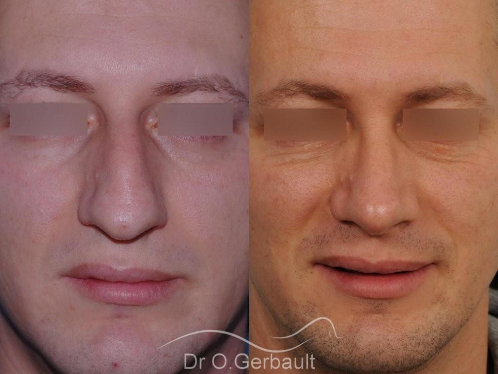 Bosse chez l'homme avec nez fort vue de face avant-apres