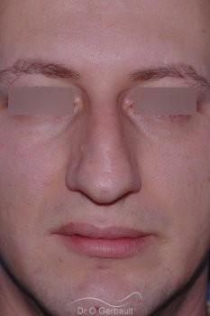 Bosse chez l'homme avec nez fort vue de face avant