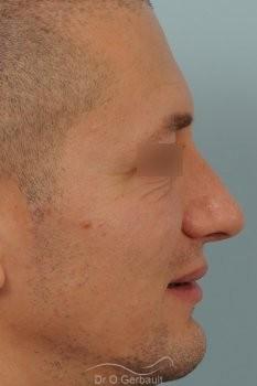 Bosse chez l'homme avec nez fort vue de profil apres