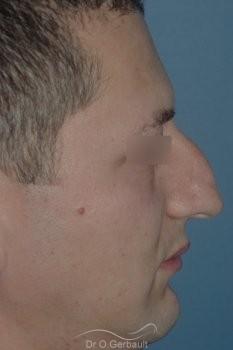 Bosse chez l'homme avec nez fort vue de profil avant