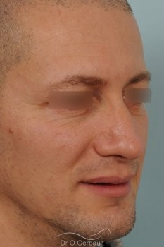 Bosse chez l'homme avec nez fort vue de quart apres