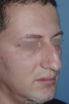 Bosse chez l'homme avec nez fort vue de quart avant