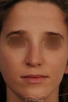 Bosse marquée sur peau fine vue de face apres