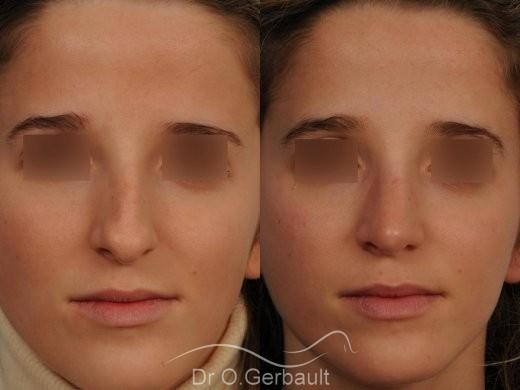 Bosse marquée sur peau fine vue de face avant-apres