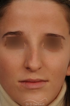 Bosse marquée sur peau fine vue de face avant