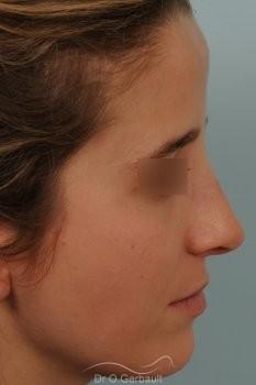 Bosse marquée sur peau fine vue de profil apres