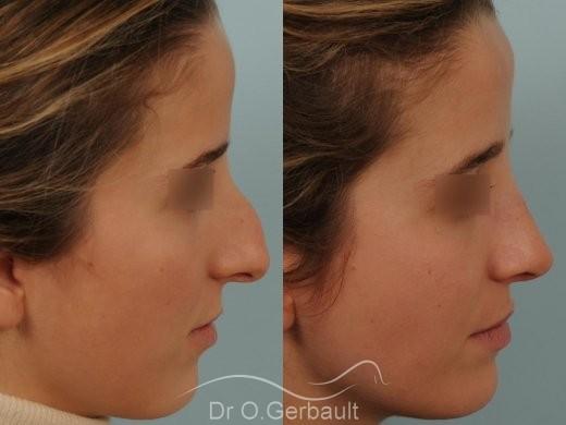 Bosse marquée sur peau fine vue de profil avant-apres
