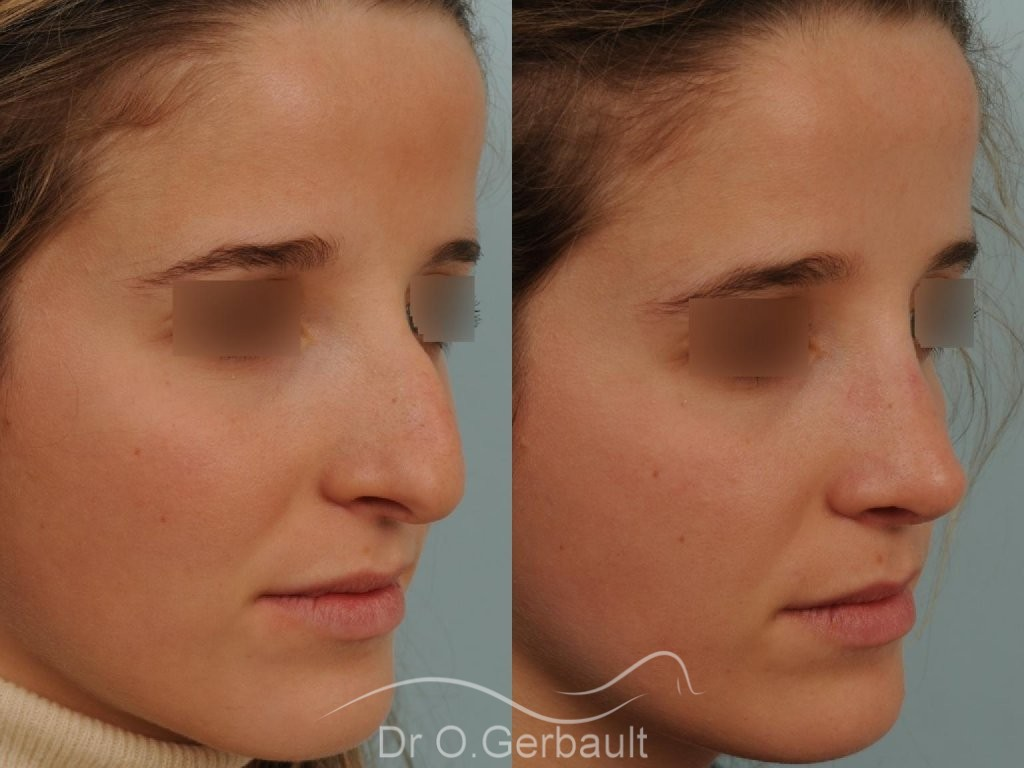 Bosse marquée sur peau fine vue de quart avant-apres