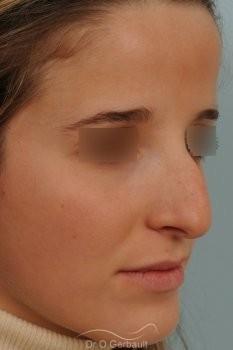 Bosse marquée sur peau fine vue de quart avant