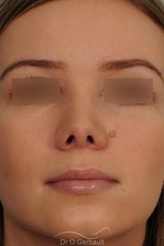 Bosse marquée sur peau fine vue de dos apres