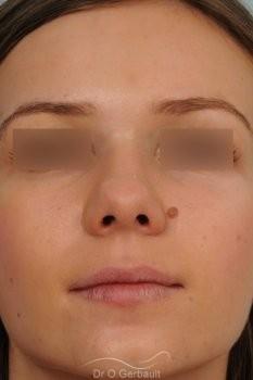 Bosse marquée sur peau fine vue de dos avant