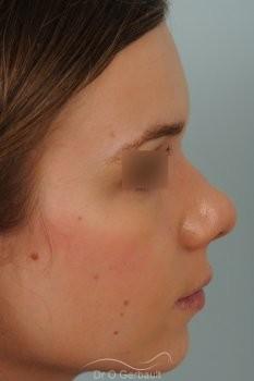Bosse marquée sur peau fine vue de profil avant
