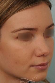 Bosse marquée sur peau fine vue de quart apres