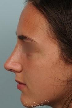 Bosse sur nez sémite vue de face apres