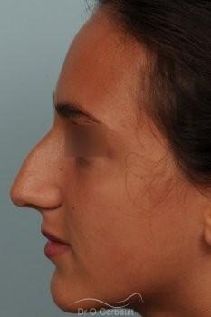 Bosse sur nez sémite vue de face avant
