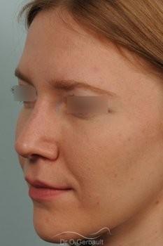 Columelle et pointe de nez tombants vue de face apres
