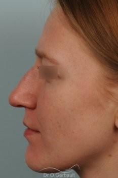 Columelle et pointe de nez tombants vue de face avant