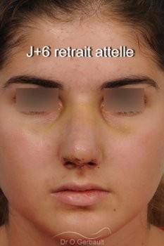 Evolution sur un an après rhinoplastie ultrasonique vue de face apres