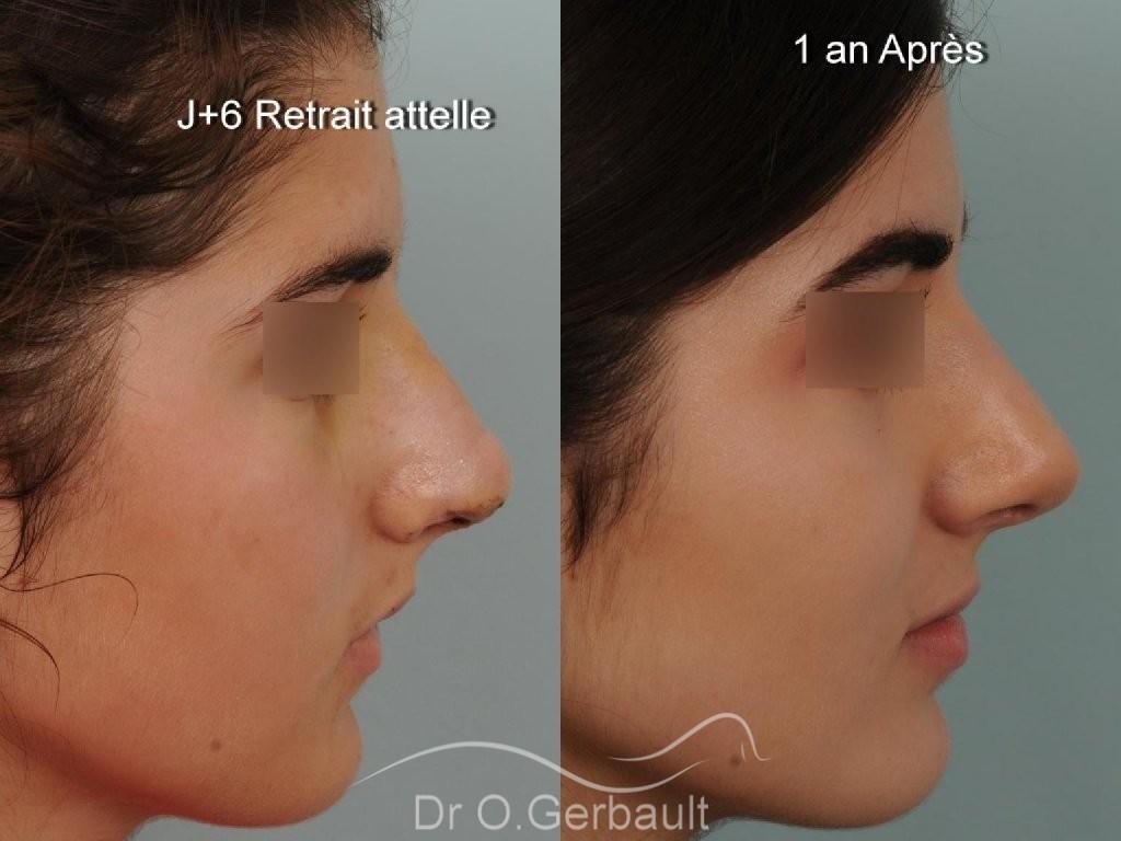 Evolution sur un an après rhinoplastie ultrasonique vue de face avant-apres