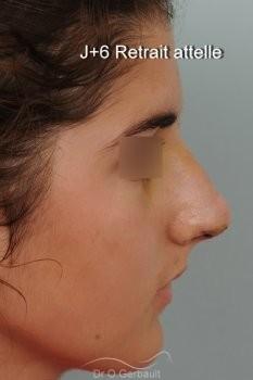 Evolution sur un an après rhinoplastie ultrasonique vue de face avant