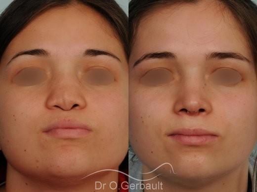Malformation due au Syndrome de Binder vue de face avant-apres