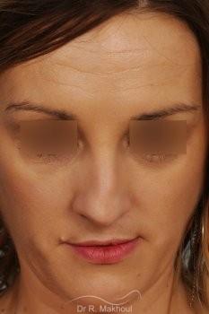 Rhinoplastie après séquelle de fente labiopalatine unilatérale vue de dos avant