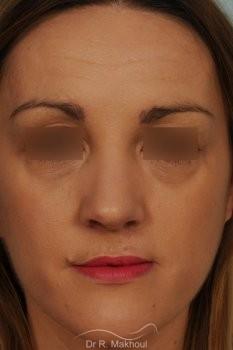 Rhinoplastie après séquelle de fente labiopalatine unilatérale vue de face apres