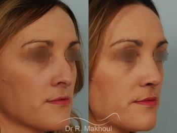 Rhinoplastie après séquelle de fente labiopalatine unilatérale vue de face avant-apres