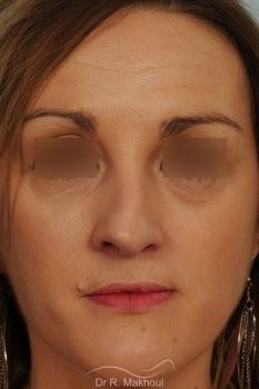 Rhinoplastie après séquelle de fente labiopalatine unilatérale vue de face avant