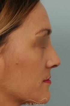 Rhinoplastie après séquelle de fente labiopalatine unilatérale vue de profil apres