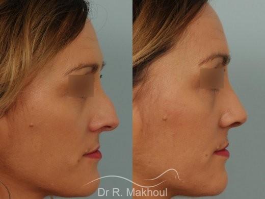 Rhinoplastie après séquelle de fente labiopalatine unilatérale vue de profil avant-apres