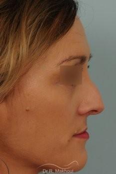 Rhinoplastie après séquelle de fente labiopalatine unilatérale vue de profil avant