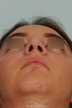 Profiloplastie : rhinoplastie et lipofilling menton vue de face apres