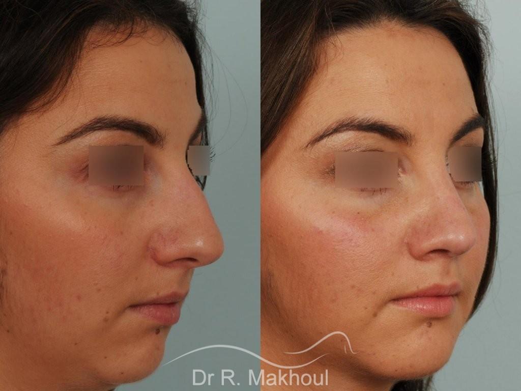 Profiloplastie : rhinoplastie et lipofilling menton vue de face avant-apres