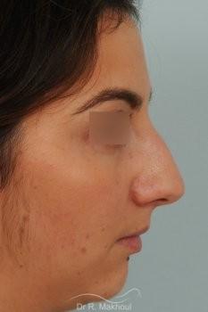Profiloplastie : rhinoplastie et lipofilling menton vue de face avant