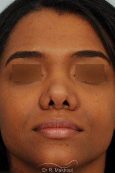 Rhinoplastie ethnique secondaire vue de dos avant