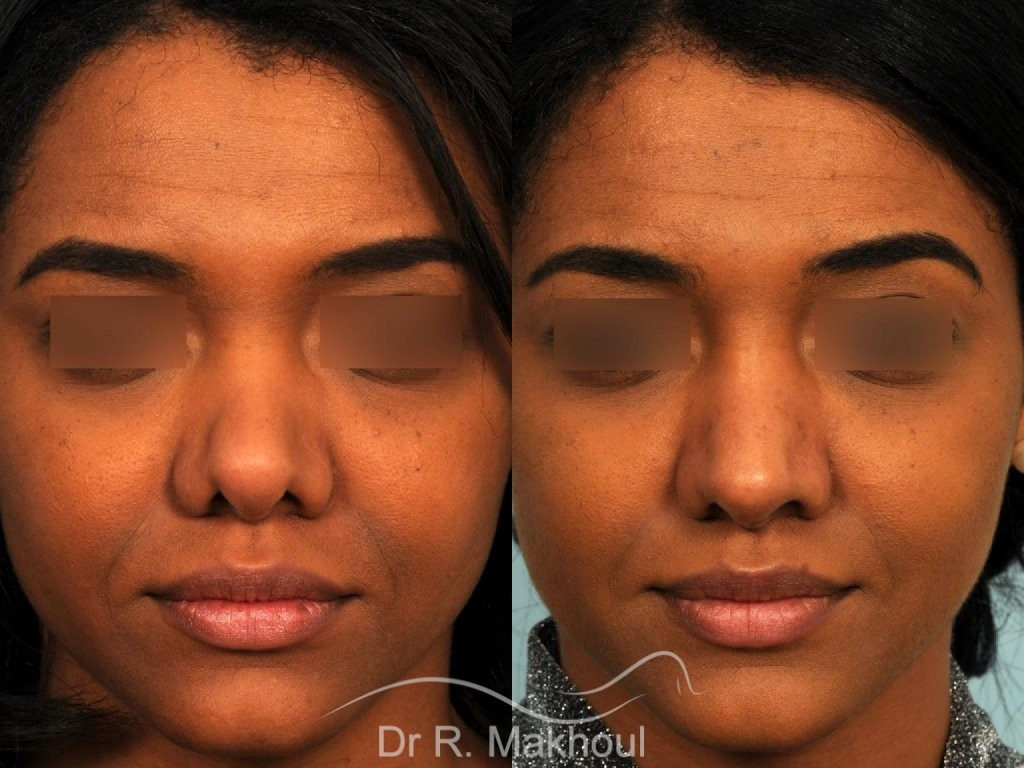 Rhinoplastie ethnique secondaire vue de face avant-apres