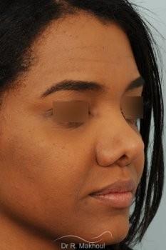 Rhinoplastie ethnique secondaire vue de face avant