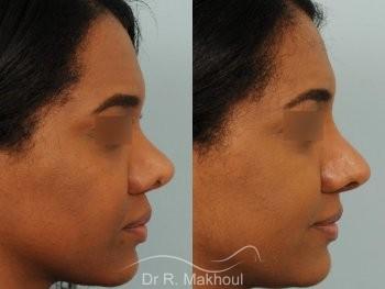 Rhinoplastie ethnique secondaire vue de profil avant-apres