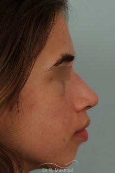 Rhinoplastie ultrasonique et structurelle primaire vue de face apres