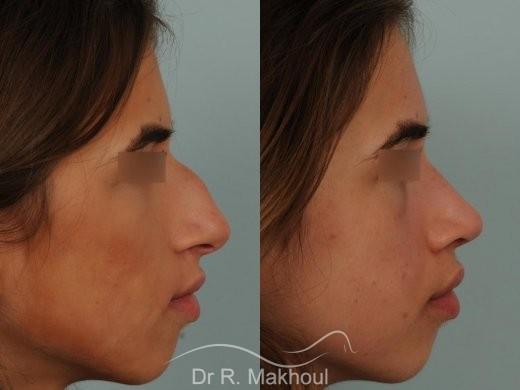 Rhinoplastie ultrasonique et structurelle primaire vue de face avant-apres