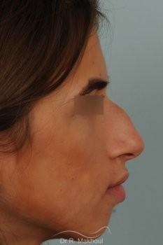 Rhinoplastie ultrasonique et structurelle primaire vue de face avant