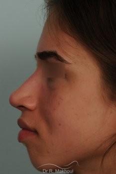 Rhinoplastie ultrasonique et structurelle primaire vue de profil apres
