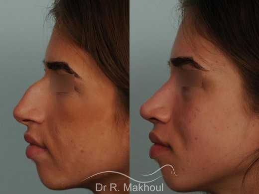 Rhinoplastie ultrasonique et structurelle primaire vue de profil avant-apres