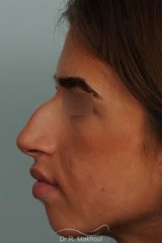 Rhinoplastie ultrasonique et structurelle primaire vue de profil avant