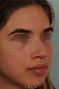 Rhinoplastie ultrasonique et structurelle primaire vue de quart apres
